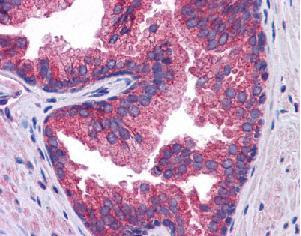 Immunohistochemistry (Formalin/PFA-fixed paraffin-embedded sections) - Anti-SLC39A10 antibody (ab117556)