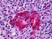 Immunohistochemistry (Formalin/PFA-fixed paraffin-embedded sections) - Anti-Neurotensin Receptor 1 antibody (ab117592)
