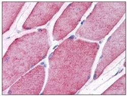 Immunohistochemistry (Formalin/PFA-fixed paraffin-embedded sections) - Anti-TCTN2 antibody (ab117621)