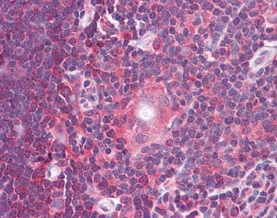 Immunohistochemistry (Formalin/PFA-fixed paraffin-embedded sections) - Anti-Gemin 2 antibody (ab117639)