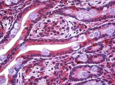 Immunohistochemistry (Formalin/PFA-fixed paraffin-embedded sections) - Anti-STOX2 antibody (ab117713)