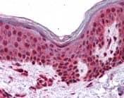 Immunohistochemistry (Formalin/PFA-fixed paraffin-embedded sections) - Anti-SLC5A6 antibody (ab117736)