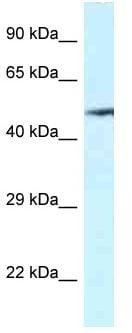 Western blot - Anti-VNN2 antibody (ab117872)
