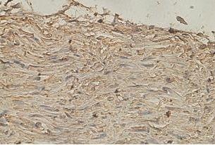Immunohistochemistry (Formalin/PFA-fixed paraffin-embedded sections) - Anti-katanin p80 antibody (ab118219)