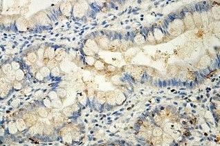 Immunohistochemistry (Formalin/PFA-fixed paraffin-embedded sections) - Anti-ITLN1 antibody (ab118232)