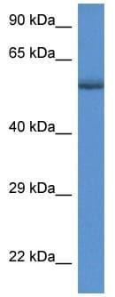 Western blot - Anti-GBA antibody (ab118304)