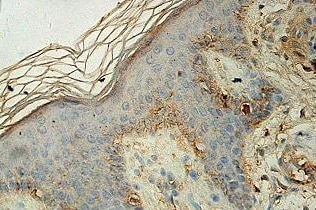 Immunohistochemistry (Formalin/PFA-fixed paraffin-embedded sections) - Anti-ALOXE3 antibody (ab118470)
