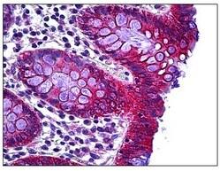 Immunohistochemistry (Formalin/PFA-fixed paraffin-embedded sections) - Anti-RHOH antibody (ab118507)