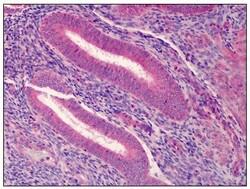 Immunohistochemistry (Formalin/PFA-fixed paraffin-embedded sections) - Anti-PDGF Receptor alpha antibody (ab118514)