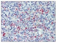Immunohistochemistry (Formalin/PFA-fixed paraffin-embedded sections) - Anti-CD62P antibody [Psel.KO.2.5] (ab118522)