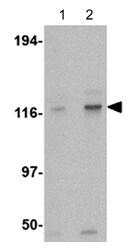 Western blot - Anti-Kinesin 5A antibody (ab118534)