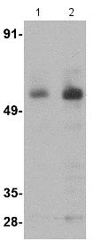 Western blot - Anti-PARL antibody (ab118554)