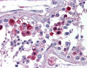 Immunohistochemistry (Formalin/PFA-fixed paraffin-embedded sections) - Anti-SKA3 antibody (ab118560)