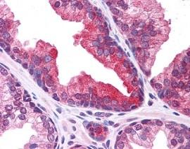 Immunohistochemistry (Formalin/PFA-fixed paraffin-embedded sections) - Anti-PLEKHM3 antibody (ab118600)