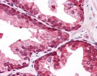 Immunohistochemistry (Formalin/PFA-fixed paraffin-embedded sections) - Anti-Sumo 2+3 antibody (ab118632)