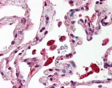Immunohistochemistry (Formalin/PFA-fixed paraffin-embedded sections) - Anti-STAT1 antibody (ab118638)