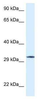 Western blot - Anti-GMPR1 antibody (ab118751)
