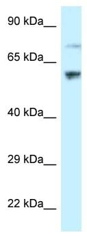 Western blot - Anti-RSL1D1 antibody (ab118756)
