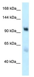 Western blot - Anti-EDEM3 antibody (ab118762)
