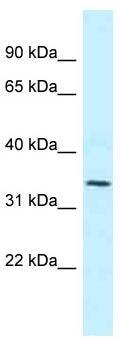 Western blot - Anti-MRPL1 antibody (ab118765)