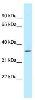 Western blot - Anti-WBSCR22 antibody (ab118766)