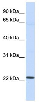Western blot - Anti-LOC390338 antibody (ab118770)