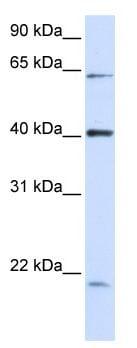 Western blot - Anti-C19orf46 antibody (ab118774)