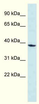 Western blot - Anti-MPPED1 antibody (ab118775)