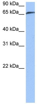 Western blot - Anti-RABGGTA antibody (ab118781)