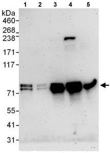 Western blot - Anti-EXOC7 antibody (ab118792)