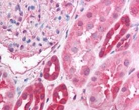 Immunohistochemistry (Formalin/PFA-fixed paraffin-embedded sections) - Anti-PPP2R1B antibody (ab118828)