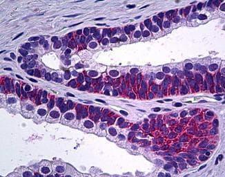 Immunohistochemistry (Formalin/PFA-fixed paraffin-embedded sections) - Anti-PPP3CC antibody (ab118893)
