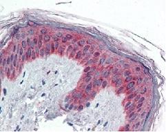 Immunohistochemistry (Formalin/PFA-fixed paraffin-embedded sections) - Anti-VAV3 antibody (ab118904)