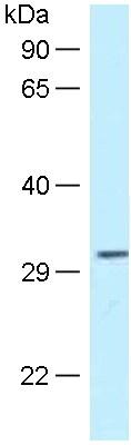Western blot - Anti-Tollip antibody (ab118928)