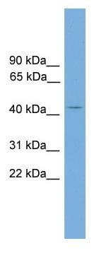 Western blot - Anti-AP1M2 antibody (ab118934)