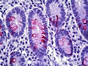 Immunohistochemistry (Formalin/PFA-fixed paraffin-embedded sections) - Anti-MUC2 antibody [Ccp58] (ab118964)
