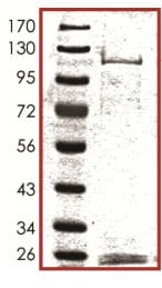 SDS-PAGE - MARK2 protein (Active) (ab119135)