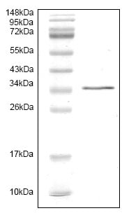 SDS-PAGE - HGF protein (His tag) (ab119139)