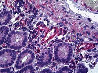 Immunohistochemistry (Formalin/PFA-fixed paraffin-embedded sections) - Anti-Calcineurin A antibody (ab119298)
