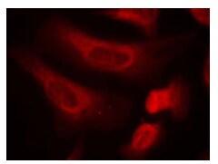 Immunocytochemistry/ Immunofluorescence - Anti-STAT1 (phospho S727) antibody (ab119331)