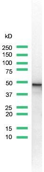 Western blot - Anti-Cytokeratin 7 antibody [SP52] (ab119697)