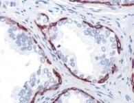 Immunohistochemistry (Formalin/PFA-fixed paraffin-embedded sections) - Anti-Cytokeratin 14 antibody [SP53], prediluted (ab119700)