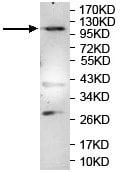 Western blot - Anti-ALS2CL antibody (ab119937)