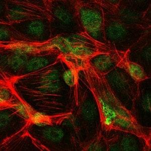 Immunocytochemistry/ Immunofluorescence - Anti-c-Jun antibody [5B1] (ab119944)