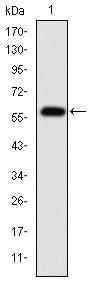 Western blot - Anti-Fibrinogen gamma chain antibody [5A6] (ab119948)