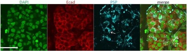 Immunocytochemistry/ Immunofluorescence - Anti-C20orf70 antibody (ab121028)
