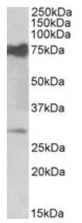 Western blot - Anti-NMNAT3 antibody (ab121030)