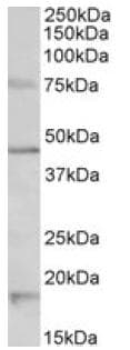 Western blot - Anti-5HT1A Receptor antibody (ab121032)