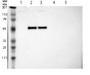 Western blot - Anti-MAGEB10 antibody (ab121107)