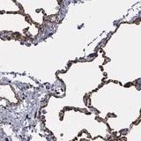 Immunohistochemistry (Formalin/PFA-fixed paraffin-embedded sections) - Anti-MAGEB10 antibody (ab121107)